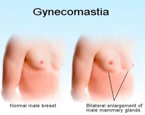 gynecomastia2-300x237