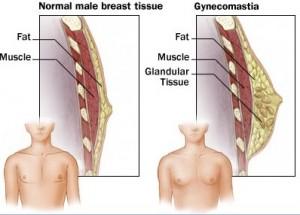 m7_gynecomastia