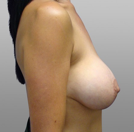 Hope, breast implant lift picture delirium, opinion