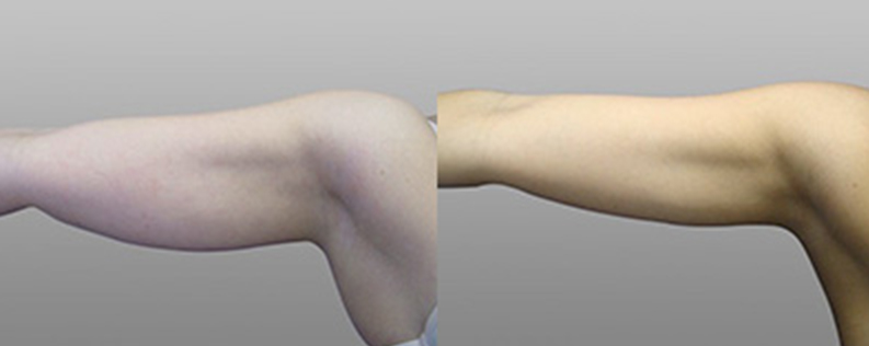 arm lift before and after 04
