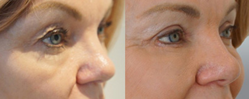Eyelid surgery before and after 01 (blepharoplasty), Form & Face Sydney