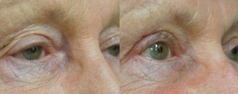 Blepharoplasty 2 - Form & Face