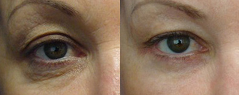 Blepharoplasty gallery, a female patient before and after procedure 03