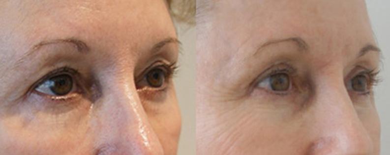 Blepharoplasty 4 - Form & Face
