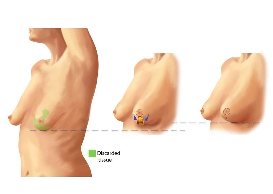Breast-lift-technique