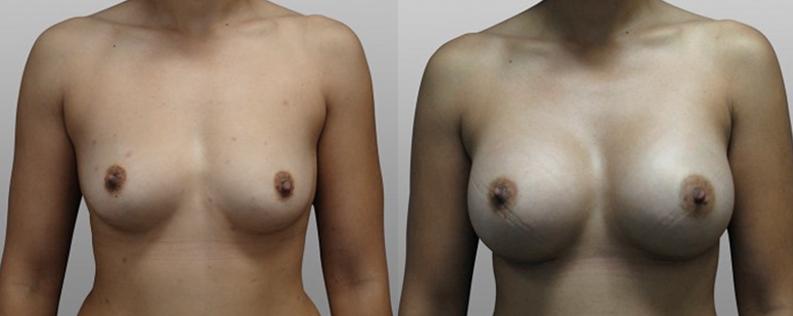 Breast enl 1 - Form & Face