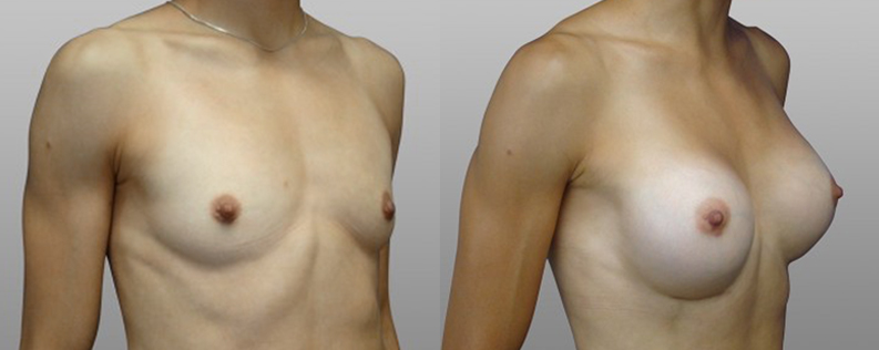 Breast enl 2 - Form & Face
