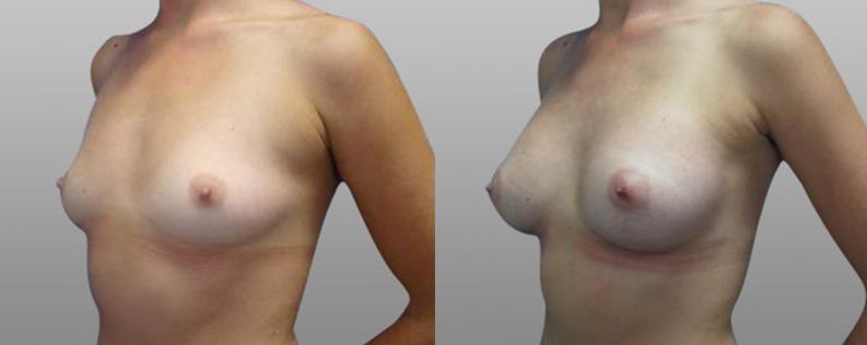 Breast enl 3 - Form & Face