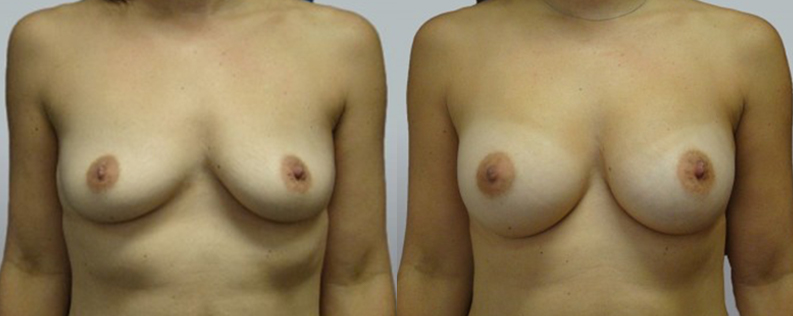 Breast enl 4 | Form & Face