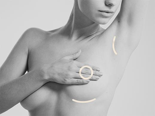Breast enl right 1 - Form & Face