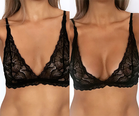 breast augmentation before and after - patient 002 - front view