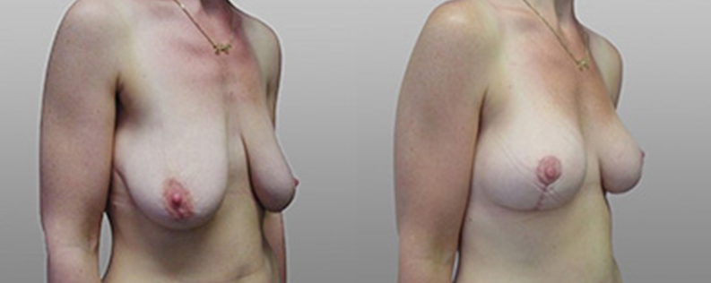 breast lift before and after - patient 01