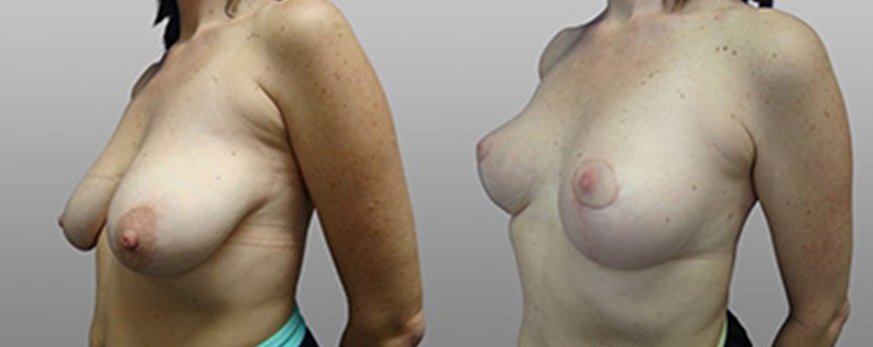 breast lift before and after - patient 02