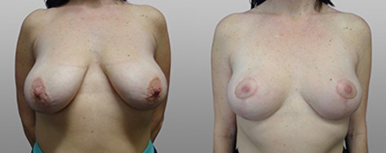 breast lift before and after gallery 03