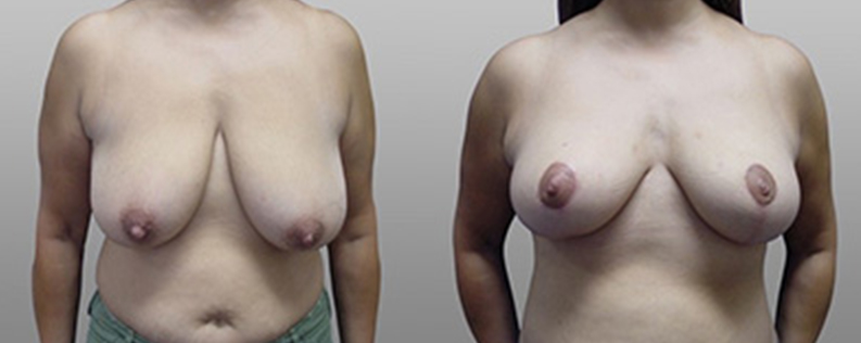 breast lift before and after gallery 04