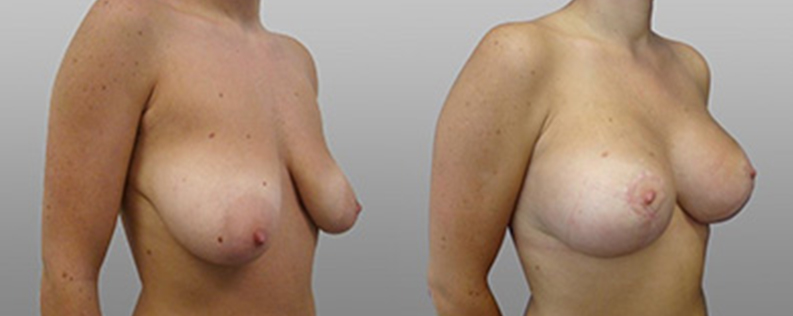 breast lift and implants before and after - patient 01 - 45 degree view