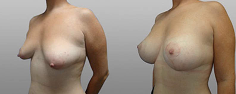breast lift and implants before and after - patient 02