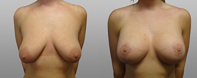 breast lift and implants before and after - patient 03