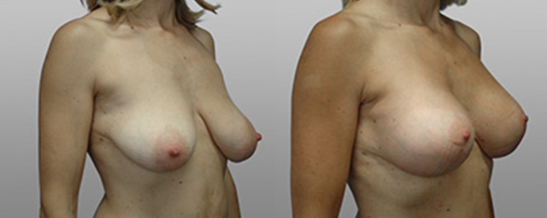 breast lift and implants before and after - patient 04