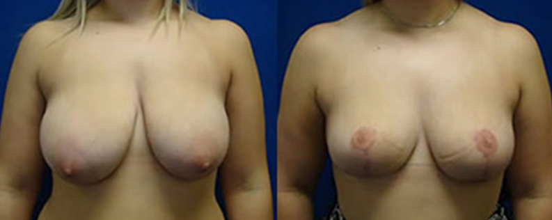 Breast reduction gallery, patient before & after surgery, photo R01, front