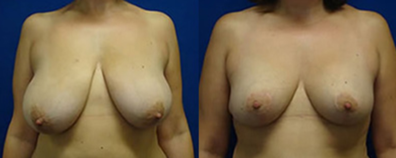 Breast reduction patient before & after photo R02