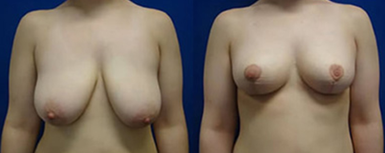 Patient before & after breast reduction surgery R03, front