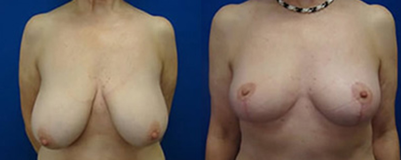 Breast reduction, photo R04, before & after