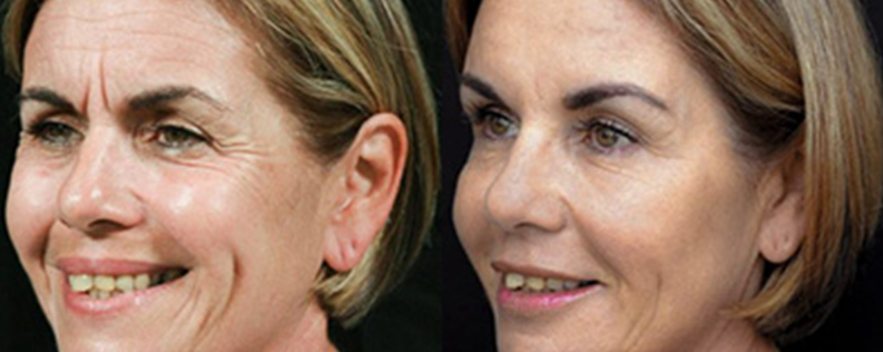 Fillers 2 - Form & Face