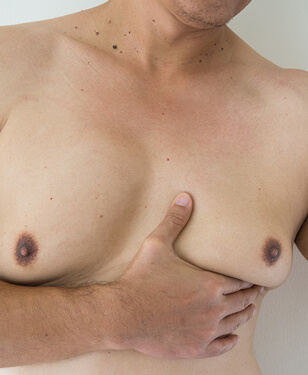 Gynaecomastia patient, photo 02-1, before surgery, front