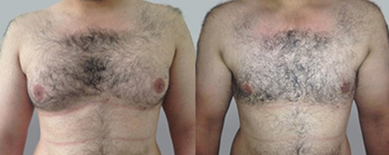 Male breast reduction surgery before and after, patient 03