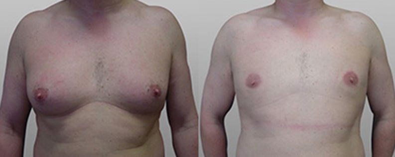Male breast reduction patient 04, before & after gallery
