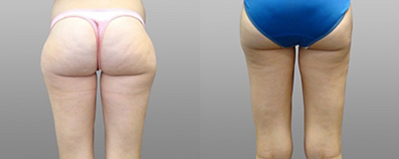 Liposuction 1 - Form & Face