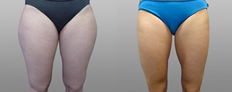 Liposuction 2 - Form & Face
