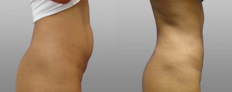 Liposuction 4 - Form & Face