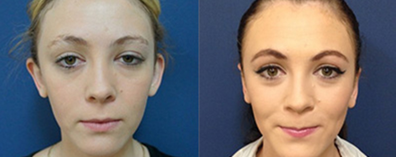 Otoplasty patient before and after cosmetic ear surgery, photo 01