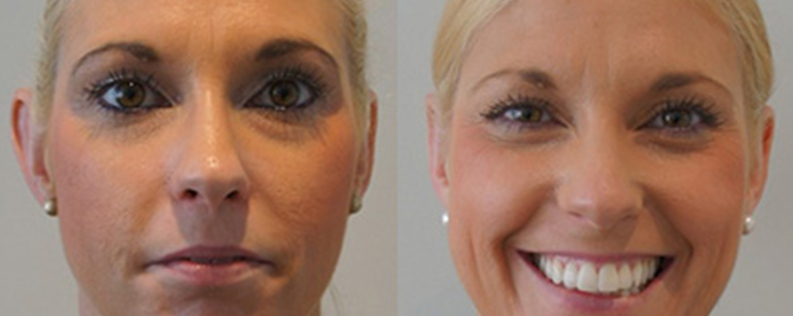 Otoplasty surgery gallery 02, front view