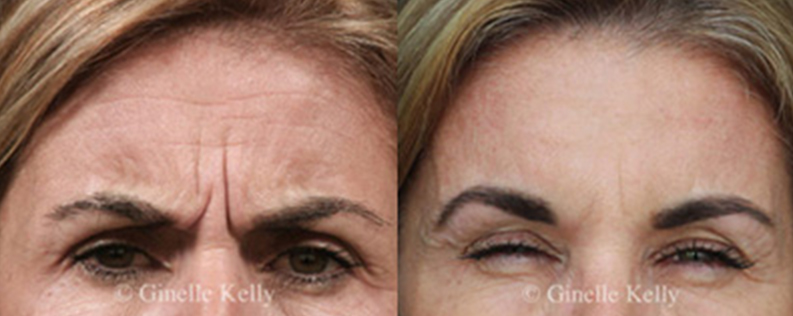 Wrinkle relaxers before & after 01