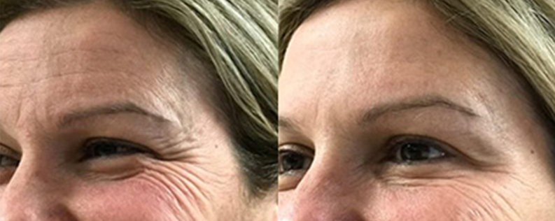 Anti-wrinkle injections 02, Form & Face Sydney