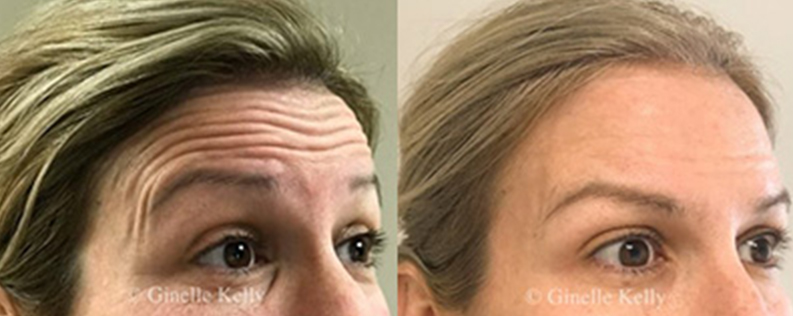 Wrinkle relaxers, before & after gallery 03