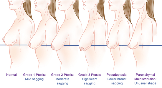 breast lift diagram ptosis - Form & Face