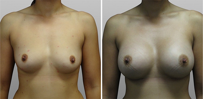 Breast reconstruction before and after, patient 01