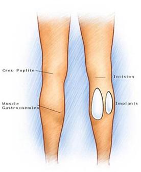 calf implants - Form & Face