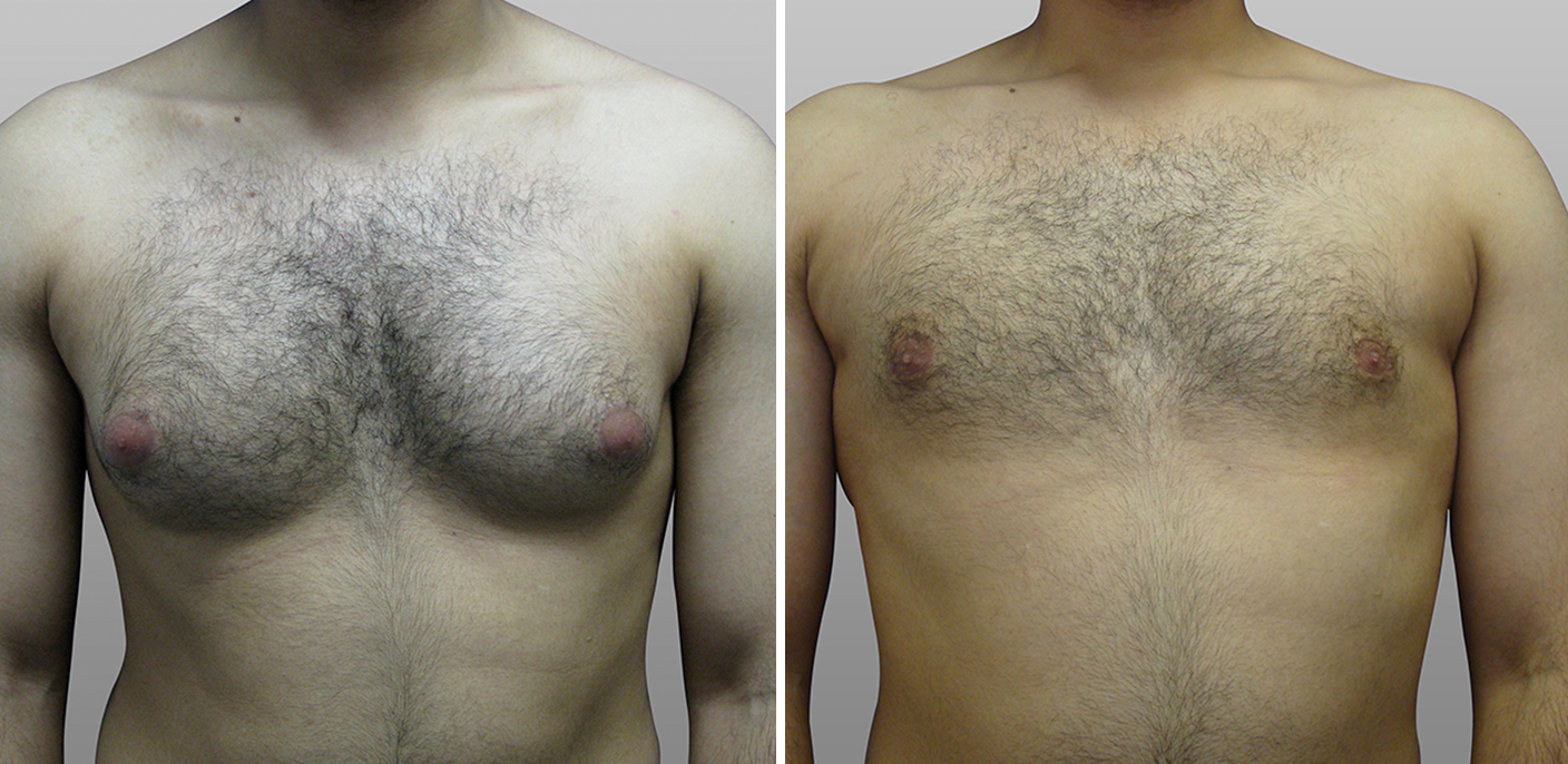 male breast reduction before and after - image 001 2x