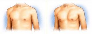 pectorale-implantaten-620x232