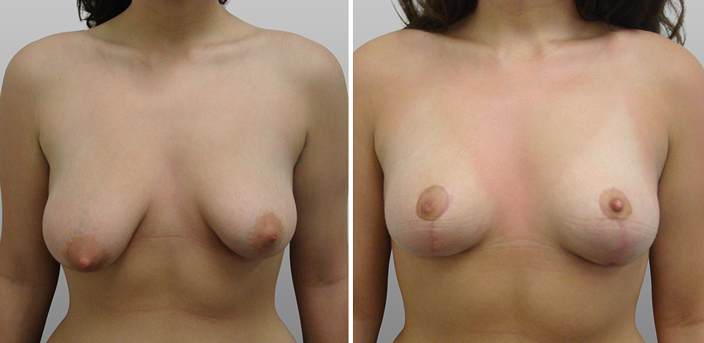 Tuberous breasts before and after, photo 01, front