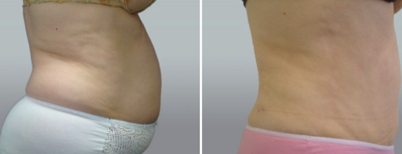 Tummy tuck before and after 105, side view