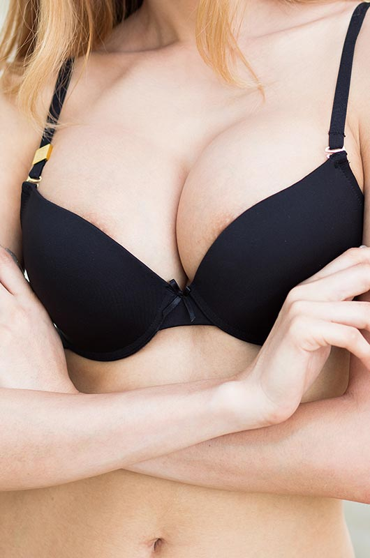 Breast lift and implants, model photo 02, Form & Face Sydney