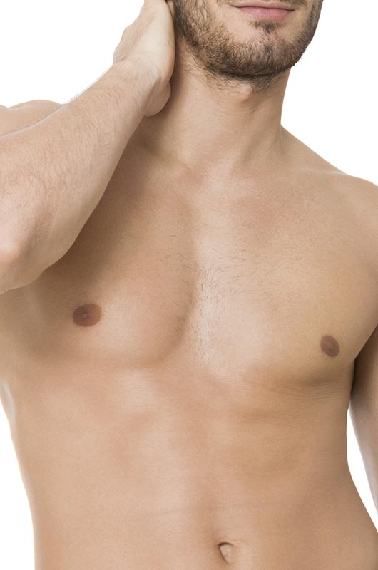 Surgery for gynaecomastia (male breast reduction) model 02-2, Form & Face Sydney, Dr Norris