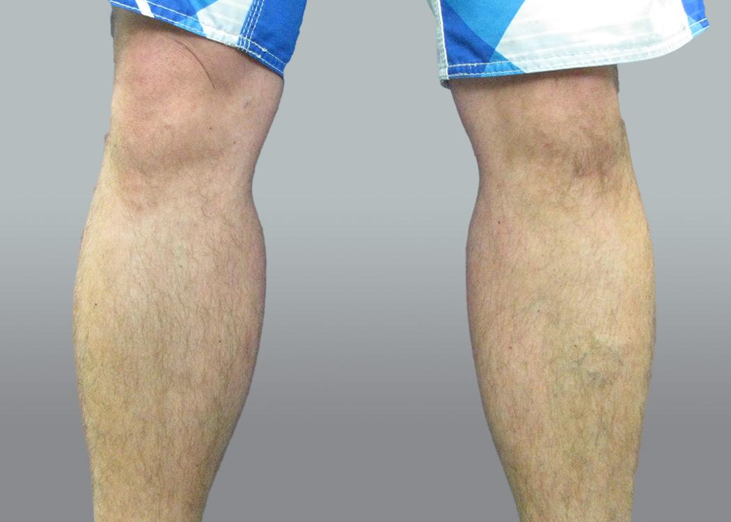 calf implant surgery - patient 1