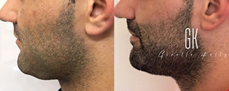 Fat dissolving treatment for double chin, male patient before & after 01